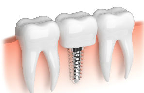 Implants | Columbia Dental Group | Santa Monica, CA Dentist