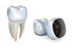 Dental Crowns | Columbia Dental Group | Santa Monica, CA Dentist