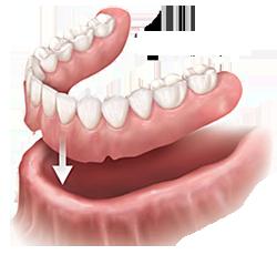 Dentures | Columbia Dental Group | Santa Monica, CA Dentist
